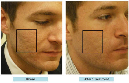acne scar treatment before and after image