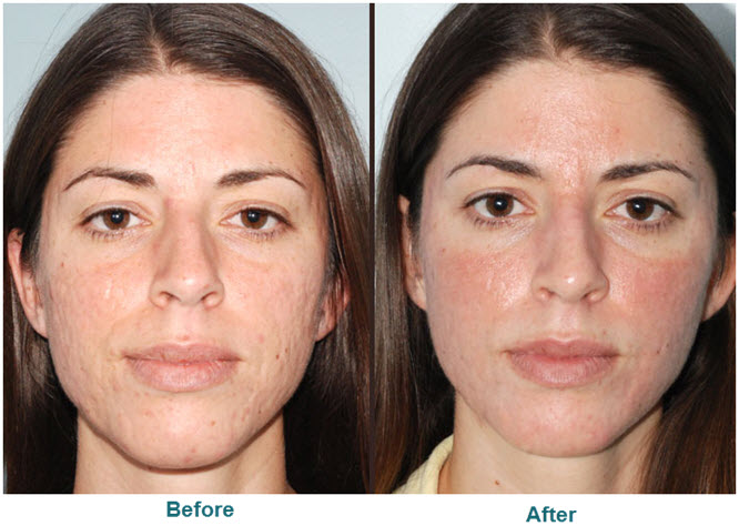 acne scar treatment san diego