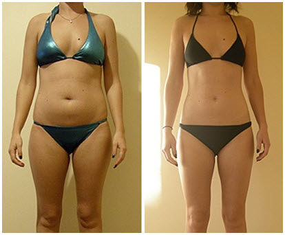 dream slim diet before after