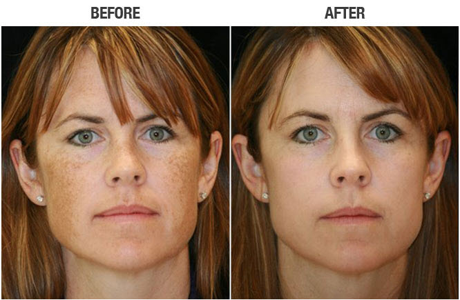 foto facial before and after image san diego