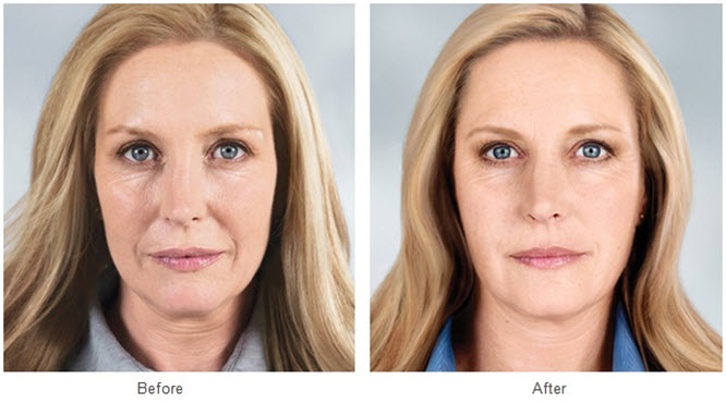 IMPROVED APPEARANCE WITH NEW COSMETIC PROCEDURES