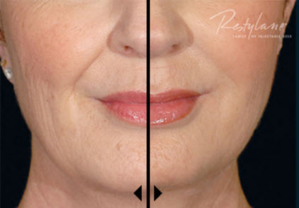 restylane before and after image