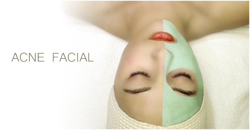 acne facial san diego
