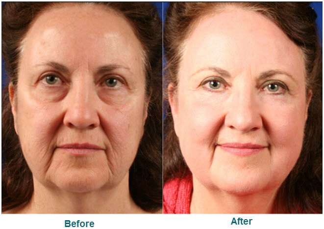 Co2 Laser Resurfacing Laser Resurfacing Prices
