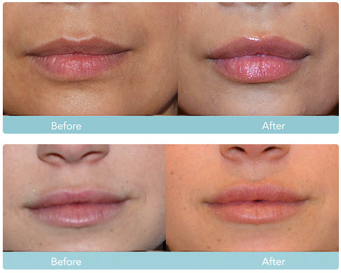 juvederm lips before after2