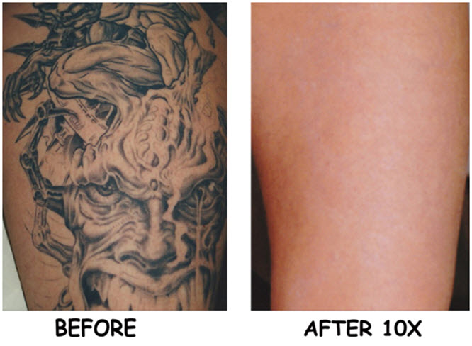 laser tattoo removal san diego