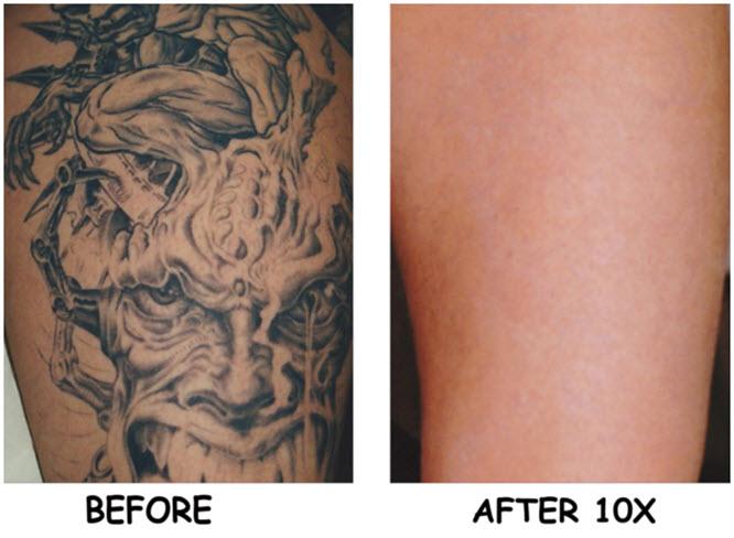 Laser Tattoo Removal | Laser Tattoo Removal Cost |