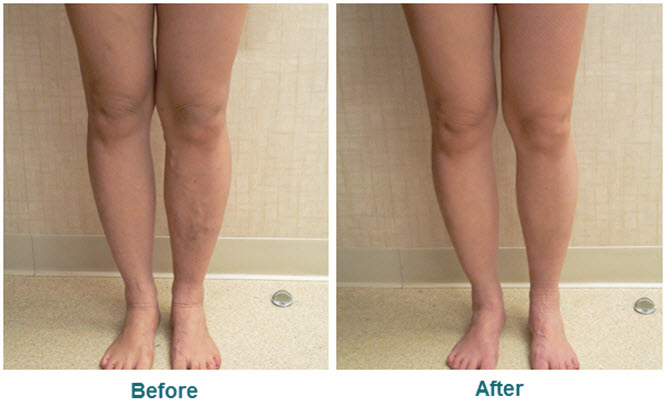 sclerotherapy before after pic